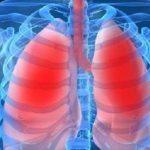 اولین پزشک متخصص ریه در ایران