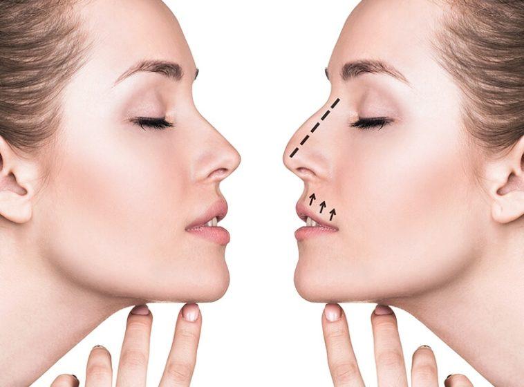 Facial plastic surgery techniques think, that