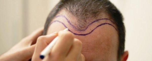 کلینیک ایران نوین بهترین کلینیک تخصصی کاشت موی تهران