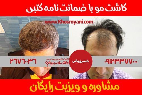 مرکز تخصصی و مجهز کاشت موی دکتر خسرویانی