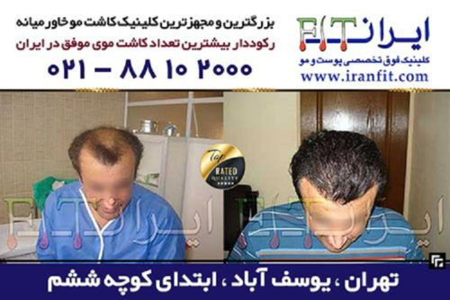 ایران فیت بهترین کلینیک کاشت مو در تهران