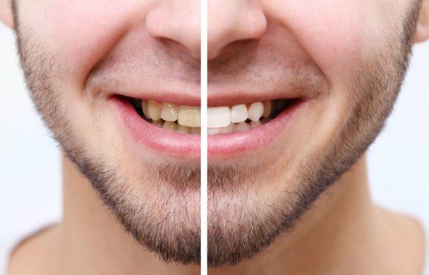 سفید کردن دندان در منزل با مواد طبیعی