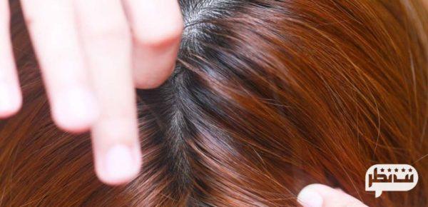 قرمزی و بثورات پوستی سر