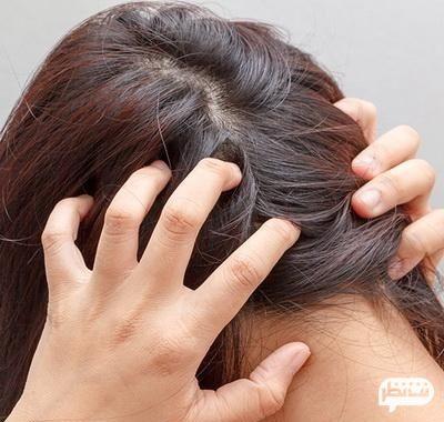 بررسی پوست سر برای رفع علائم شپش سر