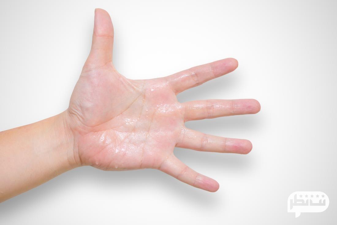 علت عرق کف دست